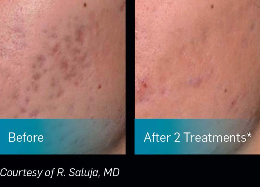 Skin Pigmentation Treatment - Pigmentation Removal Sydney